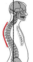 Kyphosis taken from Muscles Testing and Function with Posture and Pain by Kendall