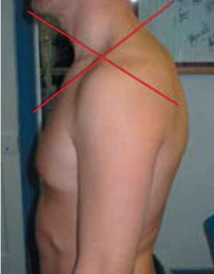 Upper Crossed Syndrome. Used with kind permission of SportEX sportEX dynamics 2