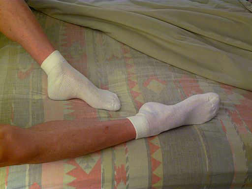 Why your turned out duck feet are trashing your body